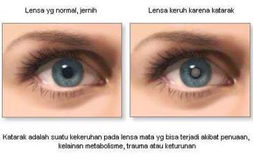 cara mengobati glaukoma akut