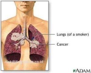 cara mengobati kanker paru-paru