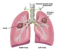 cara mengobati kelenjar paru-paru
