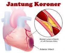 pengobatan jantung koroner kronis