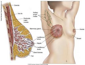 pengobatan benjolan di payudara