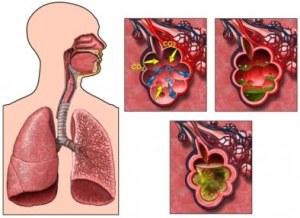 pengobatan paru-paru bronkitis