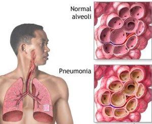 pengobatan paru paru basah