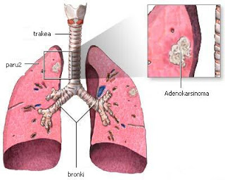 pengobatan kanker infeksi paru-paru