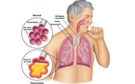 obat penyakit tbc
