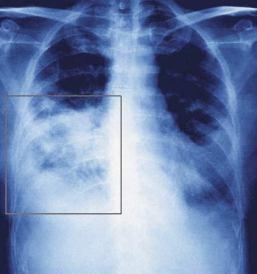 pengobatan radang paru-paru secara alami